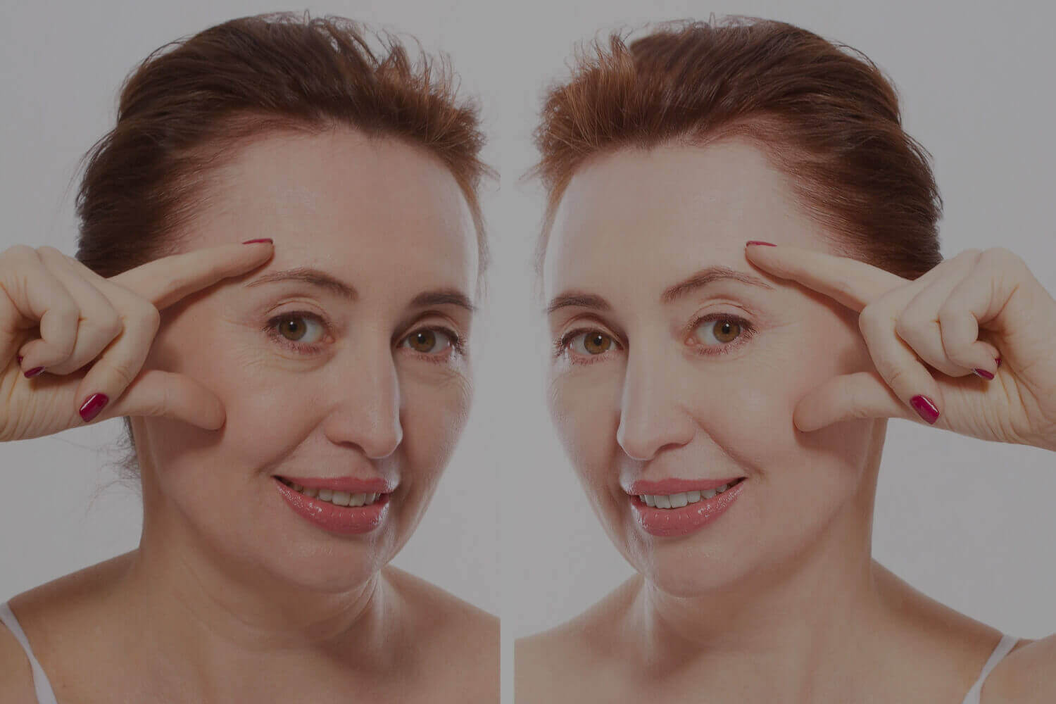 Facelift operations